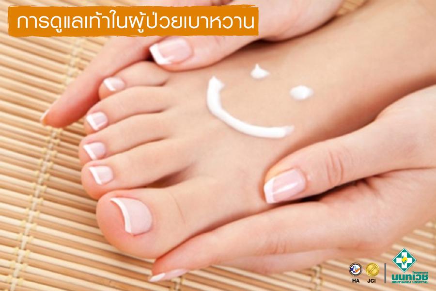 การดูแลเท้าในผู้ป่วยเบาหวาน
